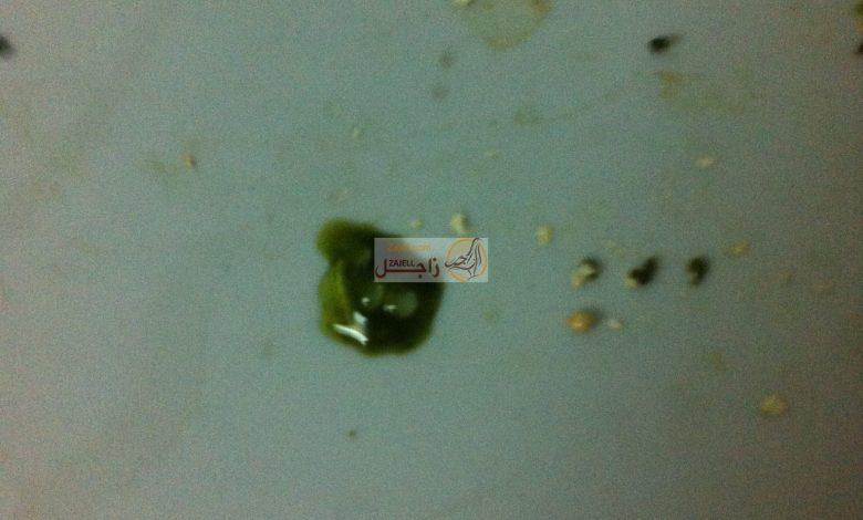 أعراض الإسهال الأخضر عند الحمام وطرق علاجه