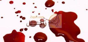 أفضل طريقة لإيقاف نزيف الدم في الحمام